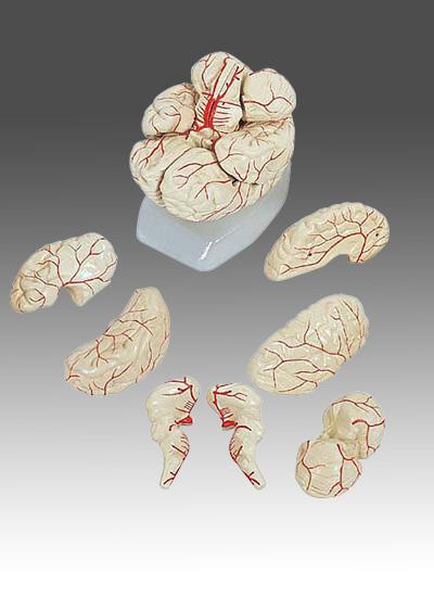 mr hersenen
