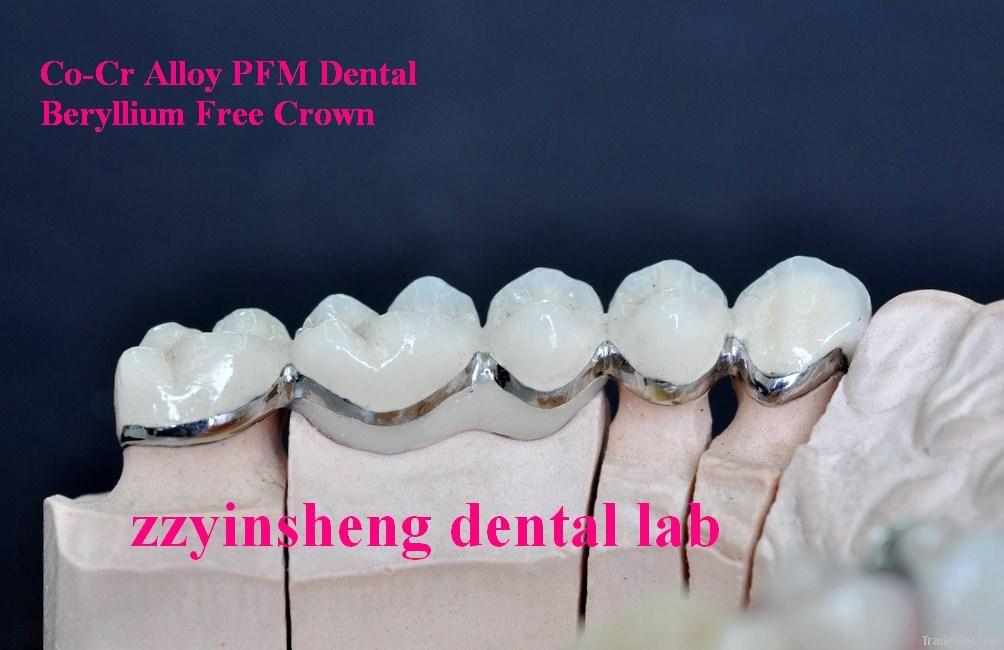 Ni Cr Alloy Beryllium Free PFM Dental Crown Product Supplier