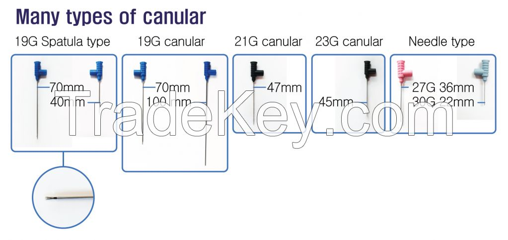 Filler Injection System by RF Needle (INNOfill)