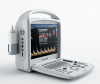 YSD280 3D/4D Color Doppler Digital Portable Ultrasound Scanner
