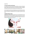 Skin Rejuvenation Machines