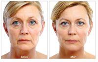 Dermal Fillers, Anti Aging Treatment