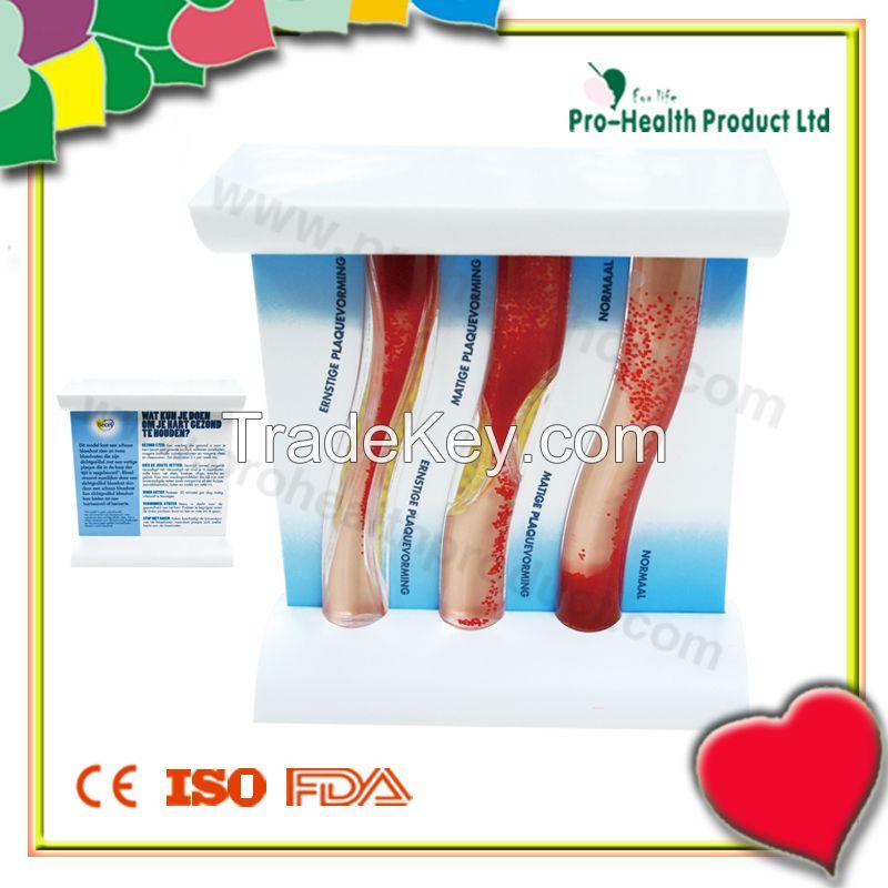 Blood Vessel Model(Liquid filled)
