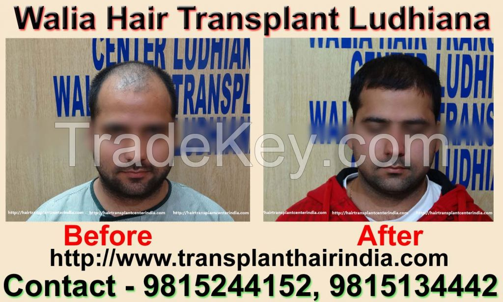 Walia Hair Transplant India Affordable Cost
