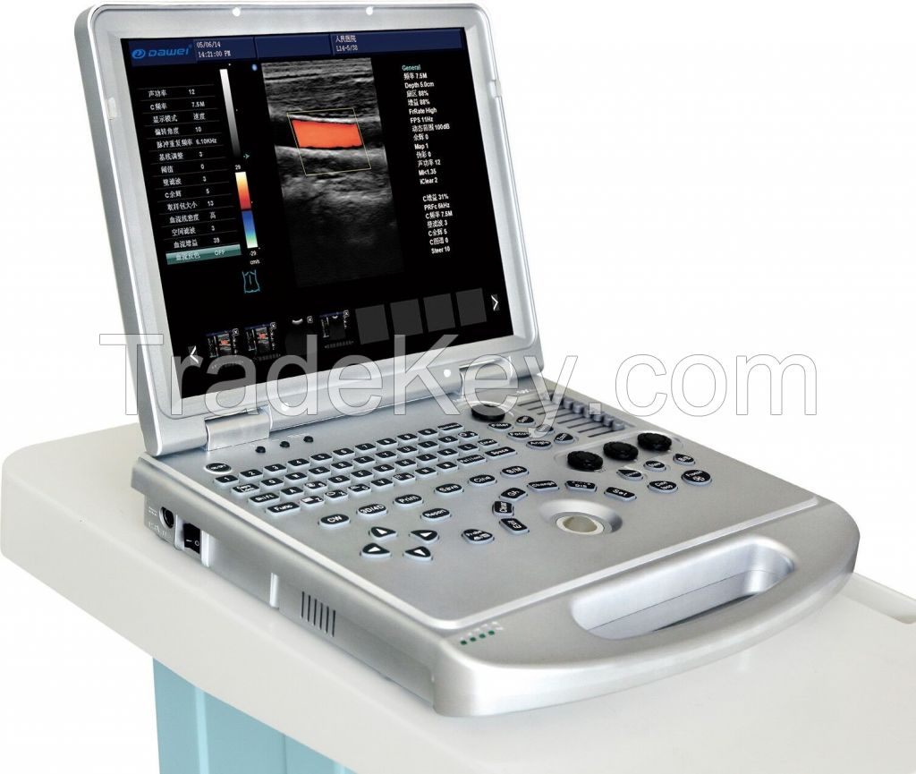 Laptop  Ultrasound Color Doppler scanner diagnostic machine 3D/ 4D model