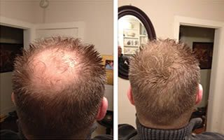 Fully  Keratin hair building fibers for  thinning hair concealling instantly