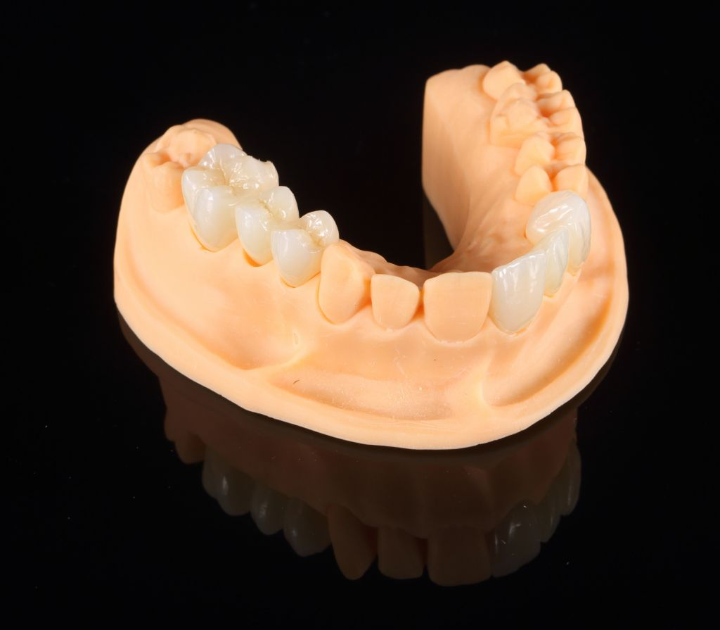 Yo Zirconia Smile Series Non-Colored Dental Zirconia Ceramic Blocks for Full Crown, Inner Crown and Bridge