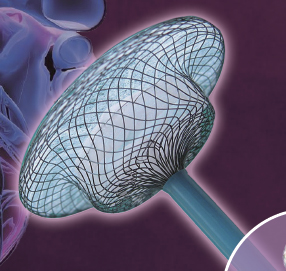 Atrial Septal Defect(ASD)Occlusion Device