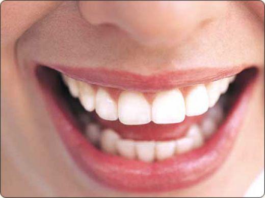Dazzle Smile Teeth Whitening
