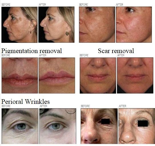 AES-CO2 99(Co2 fractional laser for skin treatment, wrinkle, scar, age spot, sun spot)