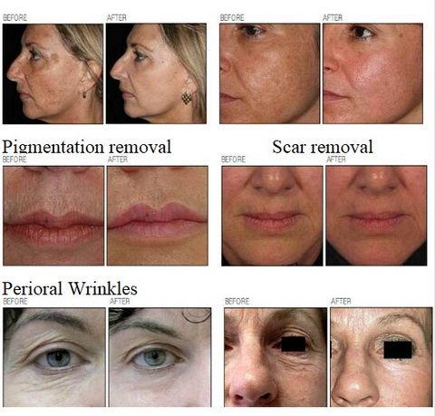 AES-RMJ88, thermage for Skin tightening/eye lifting/wrinkle removal, Stretch marks/acne removal   Scar removal/pigmenation removal, Pore Reduction and keratosis/hyperpigmentation