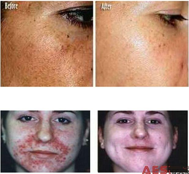 IPL for hair removal, vascular, age spot
