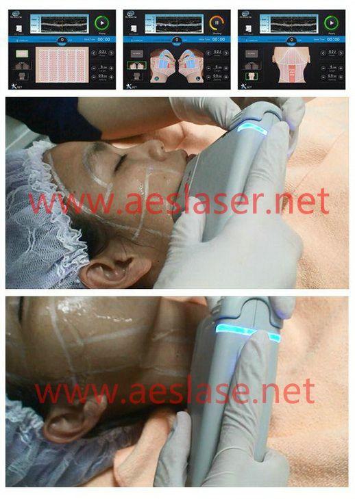 HIFU equipment for skin tight!