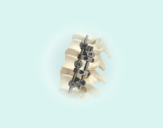 spinal implant/spinal fixation system