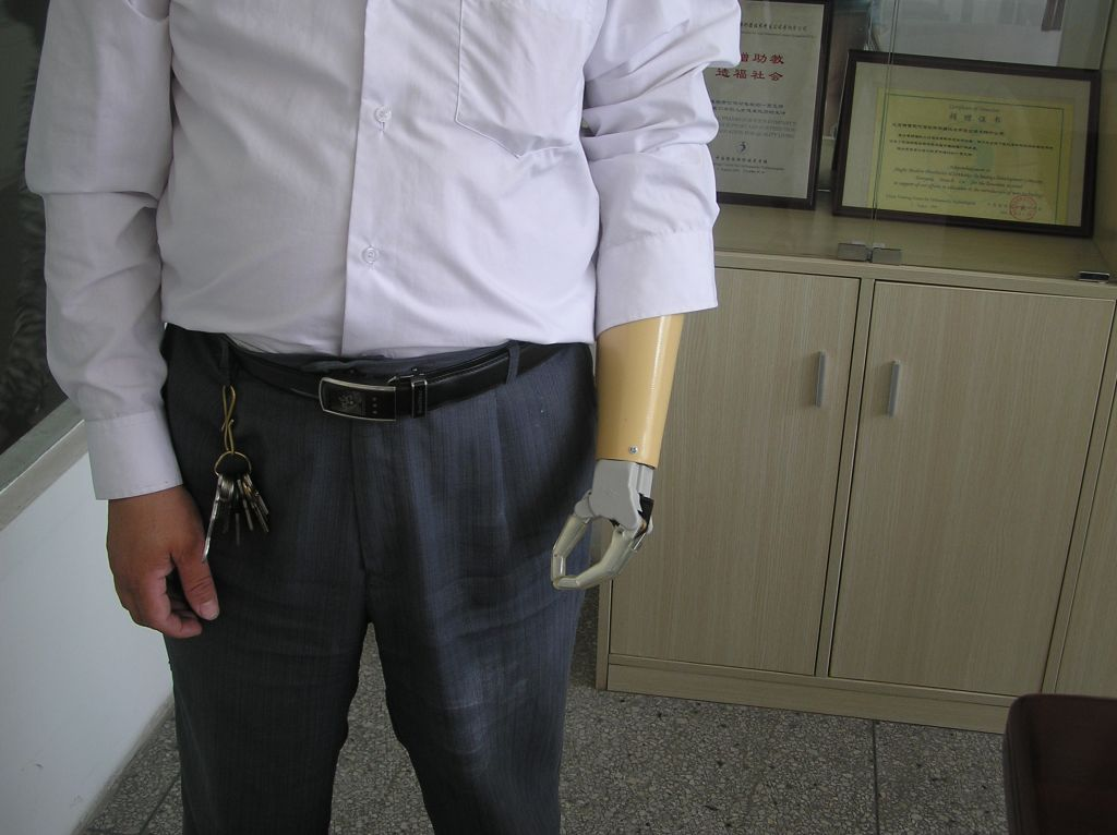 Two channel myoelectric hand for BE