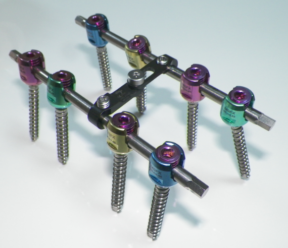 MSFX Spinal Implants