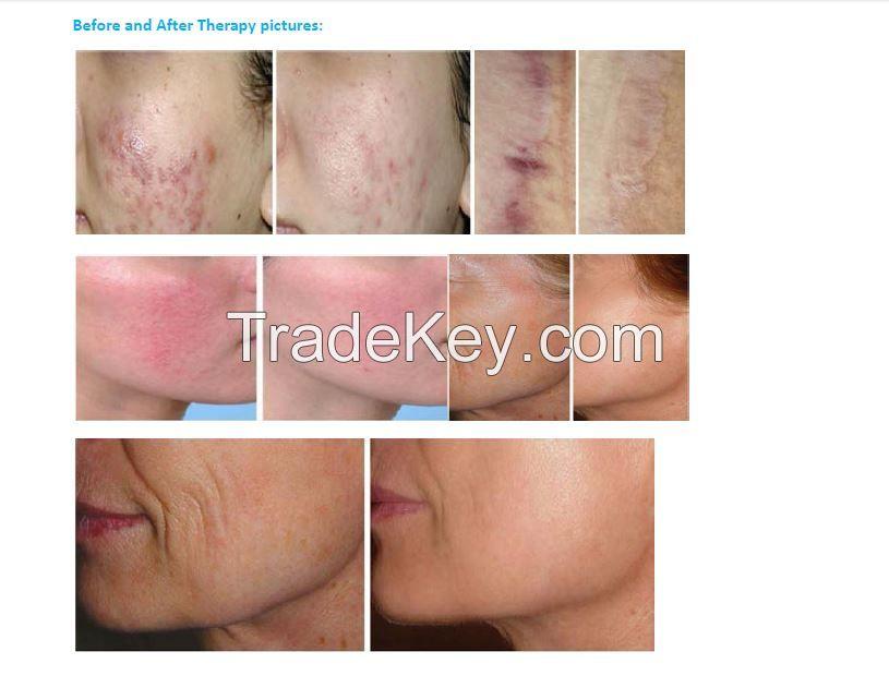 CO2 Fractional Laser Skin Resurfacing