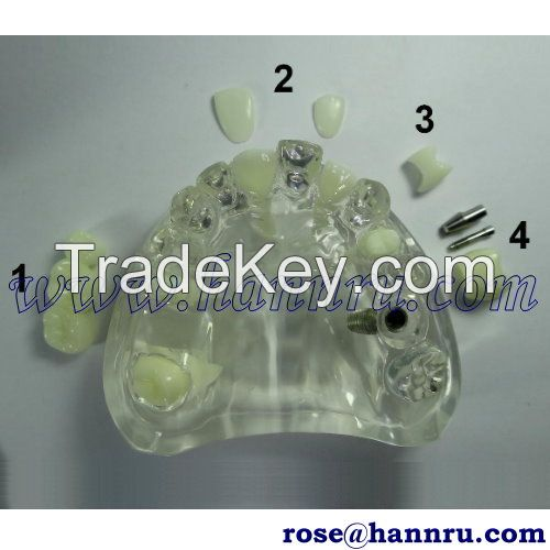 Dental model DIM-41 Artificial Teeth Model - Hann Ru