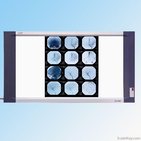 Medical Film Viewer