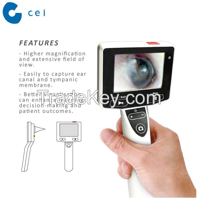 ENT Doctor Endorsed Digital Otoscope New Revolutionary Product Otitis Media Physiotherapy Ear Surgery Set Hospital Equipment