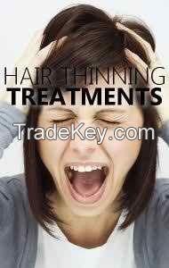 Best hair loss treatment Regenovate in pakistan call-03334838648