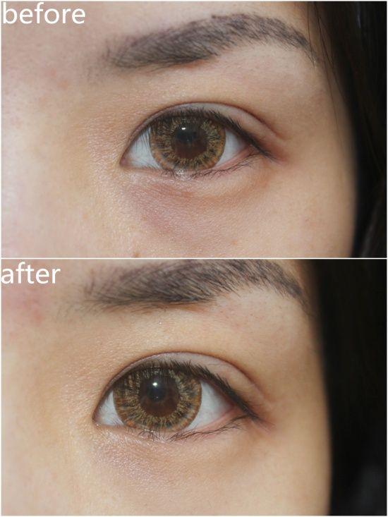 [Redergen] Dark Circle, Dark Spots, Eye Care, Professional, Skin Care, 15ml