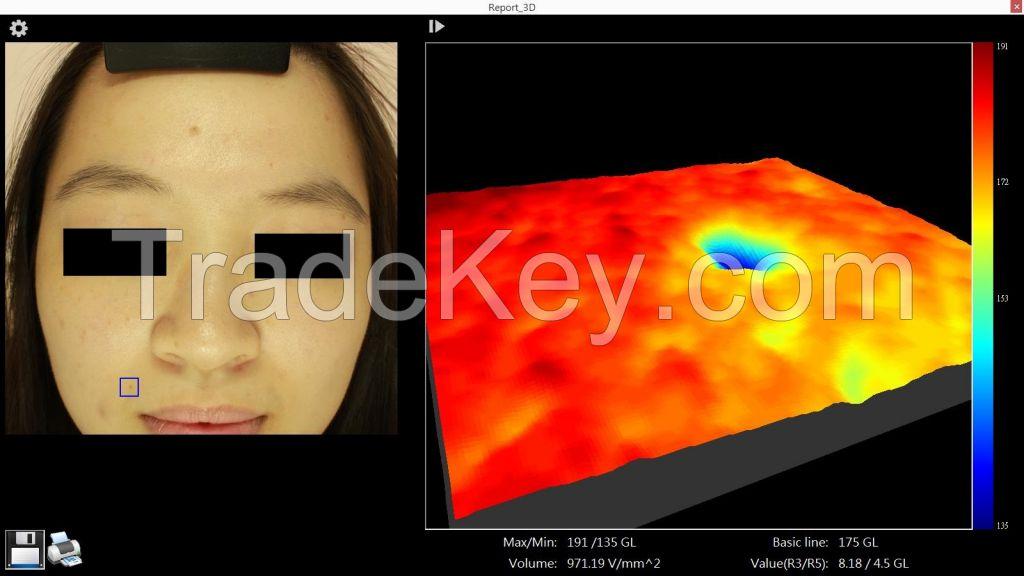 Full-Face Skin IRV
