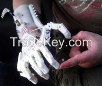 3D printed medical  equipment