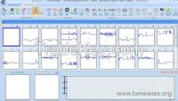 Beneware CardioTrak Holter Analysis Software World First AF Automatic Analysis