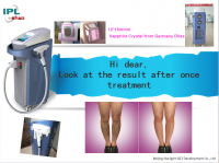 808nm Diode Laser Machine For Permanently Hair Removal