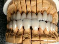 dental zirconia blocks