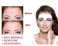 Anti Wrinkle Forehead Patch