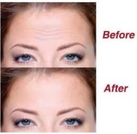 Lifting Up Brow Beauty Moisturizing Forehead Anti-Wrinkle Patch