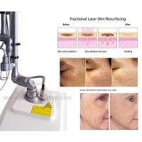 professional 10600nm 50w fractional laser vagina tightening co2 laser