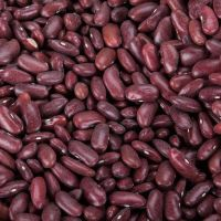 Kidney beans, Black beans, butter, chickpeas, cocoa, broad, Lentils, Lima, Mung, Vanilla, Soybeans, vigna, peas