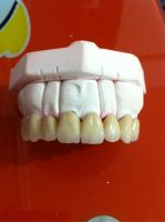 Zirconia crown/bridge/denture/dental restorations/dental supplies