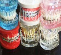 Dental Tooth Model Orthodontic Model for Patient Communication Dental Study