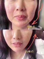 PPDO Lifting Threads V Line Face Thread