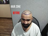 Hair wig Non surgical hair unot