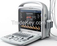 portable color doppler ultrasound