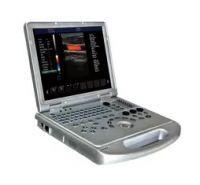 Laptop Medical Portable Ultrasound Scanner 4D Colour Doppler Ultrasound Machine