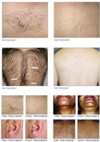 AES-Diode Laser98(Diode laser for Hair removal and Unwanted hair, Safe, fast and no down time.)