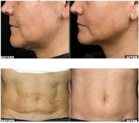 Thermage for Wrinkle removal