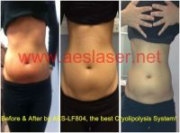 Cryolipolysis system for lose fat
