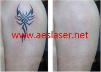 Q Switched ND-YAG laser for tattoo removal