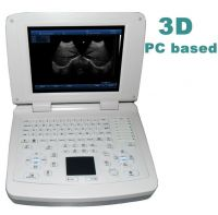 3D ultrasound scanner PC based