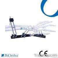 Distal Radious Fragment Orthofix External Fixator