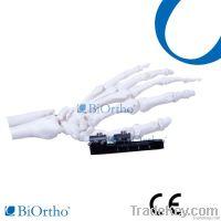 Orthofix Mini Fragment External Fixator Orthopedic Instruments