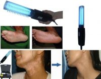 Ultraviolet Light Treatment Psoriasis, Vitiligo, Eczema, Phototherapy