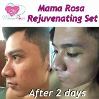Mama Rosa Rejuvenating set